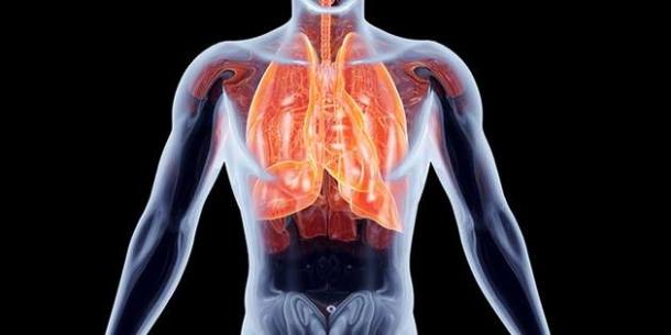 Perhatikan Tanda Awal Kanker Paru-paru